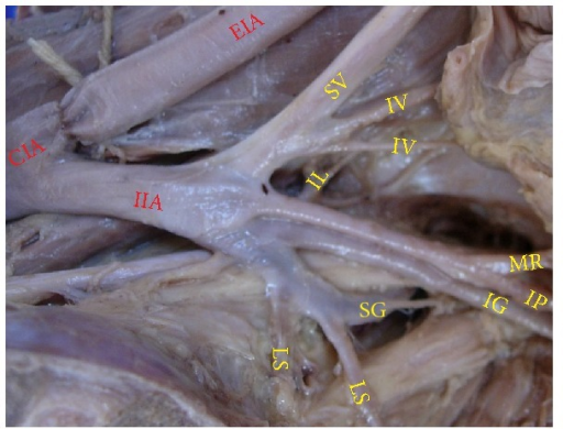 Left pelvic half showing the termination of IIA into spray of branches. CIA: common iliac artery; IIA: internal iliac artery; EIA: external iliac artery; SV: superior vesical artery; IV: inferior vesical artery; LS: lateral sacral artery; IL: iliolumbar artery; IG: inferior gluteal artery; SG: superior gluteal artery; IP: internal pudendal artery; MR: middle rectal artery.