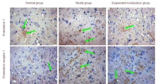 Prokineticin 1 and prokineticin receptor 1 expression in spinal cord from chronic visceral hypersensitivity rats (immunohistochemistry, × 400). Prokineticin 1 and prokineticin receptor 1 positive cells (stained yellow; arrows) were visible in each group. The expression of positive products was increased in the model group showing dark staining, while staining was light and attenuated in the suspended moxibustion and normal groups.