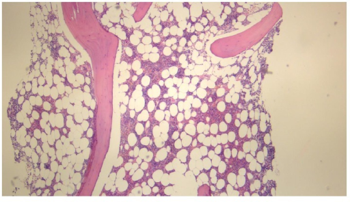 Haematoxylin and eosin stain of bone marrow trephine showing absence of megakaryocytes (magnification: ×5).
