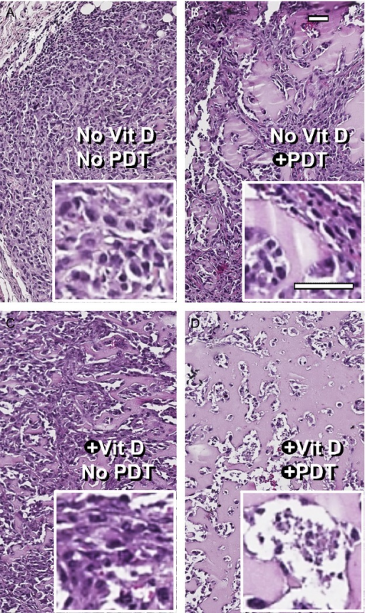 Morphological differences in tumors subjected to various treatment conditions. (A–D), These images illustrate the progressive loss of nucleated cells, the increase in colloid-filled cystic spaces (pink), and the increase in completely empty spaces (white), occuring with the addition of Vit D to the ALA-PDT treatment regimen. Scale bars, 50 μm. ALA, 5-aminolevulinate; PDT, photodynamic therapy.