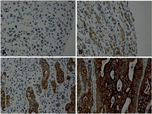 Intensity of carbonic anhydrase IX (CA9) expression in esophageal adenocarcinoma with immunohistochemical staining. Samples were scored from 0 to 3: a, Negative (0, no stain or weak stain in <10 % cells). b, Weakly positive (1, weak stain in ≥ 10 % cells). c, Moderately positive (2, moderate stain in ≥ 10 % cells). d, strongly positive (3, strong stain in ≥ 10 % cells). CA9 expression was predominantly distributed in the tumor cell membrane