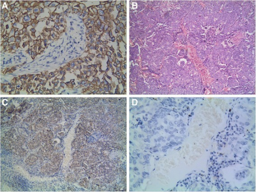 Representative results of KAI1 and vimentin and E-cadherin protein in NSCLC. a Moderately differentiated NSCLC, H&E staining. b KAI1 protein predominantly localized in the membrane and cytoplasm in well-differentiated squamous carcinoma. c NSCLC cells did not express a detectable level of E-cadherin protein. d Vimentin protein localized in the cytoplasm and membrane in NSCLC cells (a, c, and d are serial sections)