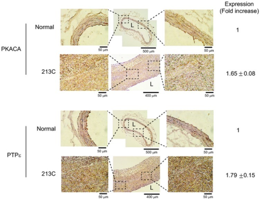 "Increased expression of PKACA and PTPε in human carotid arterial sections with atherosclerotic lesions.Immunohistochemistry was performed using the paraffin-embedded tissue sections of human carotid arteries with thickened intimal lesions (Origin Technologies, Rockville, MD, USA). The indicated proteins were stained with specific immunohistochemistry-compatible antibodies. Frozen sections of normal peripheral arteries were stained for control. The 3',3'-diaminobenzidine (DAB)-stained images are obtained from 5 patient carotid tissue sections and quantified with the HistoFAXS Tissue Analysis System (TissueGnostics, USA). The expression level is shown as a fold increase of DAB intensities in patient samples versus that in normal vessel. A representative image with patient identification number is shown. The letter ""L"" indicates the vascular lumen."