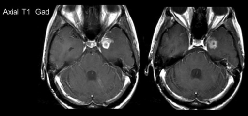 Patient 2: MRI scans post contrast shown pre- and post-treatment. Pre- and post-treatment scans were taken ∼3 months apart.