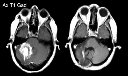 Patient 4: MRI scans post contrast shown pre- and post-treatment. Pre- and post-treatment scans were taken ∼5 months apart.