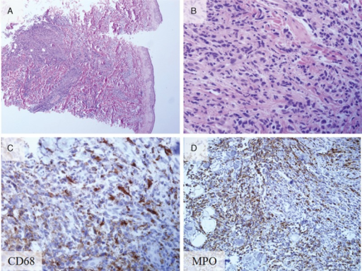 Histopathology and immunohistochemical staining of biopsy from the skin leukemia cutis. (A) Leukemic cell infiltration beneath the epidermis (hematoxylin and eosin stain; original magnification ×40). (B) Magnified view of the leukemic cell infiltration (hematoxylin and eosin stain; original magnification ×400). (C) CD68-positive cells (CD68 staining; original magnification ×400). (D) Myeloperoxidase-positive (MPO) cells (MPO staining; original magnification ×400). MPO cells = myeloperoxidase-positive cells.