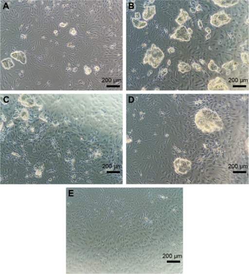 The morphological results of BMSC in each group under a light microscope (×100).Notes: (A) L-RADA16 group, (B) L-RADA16 + TGF-beta 1 group, (C) D-RADA16 + TGF-beta 1 group, (D) L-RADA16-RGD + TGF-beta 1 group, and (E) negative control.Abbreviations: BMSC, bone mesenchymal stem cells; TGF, transforming growth factor.
