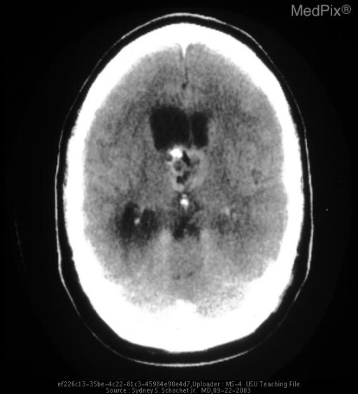 Axial CT showing partially cystic, focally mineralized suprasellar lesion.  Note also hydrocephalus with enlargement of the left lateral ventricle.