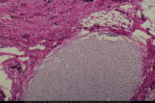 Histological section showing fibrous tissue, adipose tissue and mature hyaline cartilage.