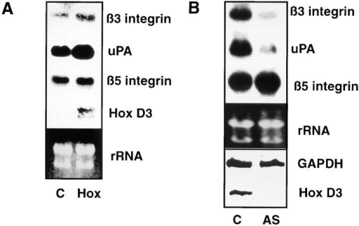 Influence of Hox D3 on β3 integrin and uPA expression in endothelial cells. (A) Northern blot analysis of β3 integrin, β5 integrin, uPA, and Hox D3 mRNA levels from 20 μg total RNA from immortalized HUVEC stably transfected with  control (C) or Hox D3 (Hox) expression vectors. The lower panel  shows ethidium bromide staining of total RNA loaded for each  sample in the corresponding gel. (B) Northern blot analysis of β3  integrin, β5 integrin, and uPA mRNA expression levels from immortalized HUVECS transfected with control (C) or antisense  expression vectors for Hox D3 (AS). RNA (20 μg) from each  sample was loaded, and total RNA was visualized by ethidium  bromide staining of the corresponding gel. The lower box shows  RT-PCR of 1 μg total RNA from cells transfected with control  (C) or antisense expression vectors against Hox D3 (AS) using  primers for Hox D3 or GAPDH.