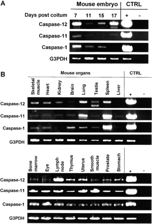 Differential gene expression patterns of the mouse inflammatory caspase subfamily. Single-stranded cDNAs from multiple mouse tissues (panel I and II) were amplified by PCR using primers specific for caspase-1, -11, or -12. PCR for glyceraldehyde-3-phosphate dehydrogenase (G3DPH) was performed to ensure that an equal quality and quantity of cDNA was used. Negative (−) and positive (+) PCR controls (CTRL) lacking or containing the specific cDNAs, respectively. (A) Expression of caspase-1, -11, and -12 mRNA during mouse embryonic development. (B) Expression of caspase-1, -11, and -12 mRNA in different mouse organs.