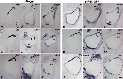 "Ectopic expression of Noggin down-regulates crista-associated genes in chicken inner ears.Inner ears were electroporated with pNoggin (A,C,E) and pIRES-Gfp (B,D,F) at E3.5 and harvested 14 hrs later. (A–A"") Adjacent sections probed for Gfp (A), Msx1 (A'), and Bmp4 (A"") transcripts. Msx1 (A') expression is abolished in the electoporated (A), Bmp4-positive anterior crista region (A"", ac), whereas Bmp4 expression is not affected (A""). Msx1 expression is reduced in the mesenchymal region (A', arrowheads). (C–C"") Adjacent sections showing the absence of Lmo4 (C') in the electroporated (C), Sox2-positive anterior crista region (C"", arrows). (E–E"") Adjacent sections probed for Gfp (E), Gata3 (E'), and Ser1 (E"") transcripts. (E') Gata3 expression is down-regulated in the anterior crista (arrows) as well as the surrounding mesenchyme (arrowheads), but Ser1 expression is not changed (E""). (B,D,F) None of these gene expression patterns are affected in specimens electroporated with the pIRES-Gfp. Abbreviations: cvg, cochleovestibular ganglion. Scale bar in (F"") equals 100 μm and applies to all panels."