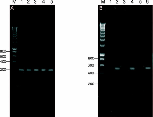 Expression of human chorionic beta subunit in uterine cervix. (A) Electrophoretic separation showing representative RT-PCR results performed for uterine cervix carcinomas. A 210 bp fragment of hCGβ was amplified for the uterine cervix carcinoma (lanes 1 – 4) and placenta (lane 5) samples. Molecular size marker is given in lane M. (B) RT-PCR analysis of total RNA from normal myometrium (lanes 1–2) and uterine cervix tissue (lanes 3–6). Lanes 1, 3 and 5 used RT-PCR primers specific to the hCGβ mRNA as was done in Figure 1A. Lanes 2, 4 and 6 are control RT-PCRs with primers specific to the β-actin mRNA (predict a 509 bp product) to confirm the integrity of the RNA. M – size marker.