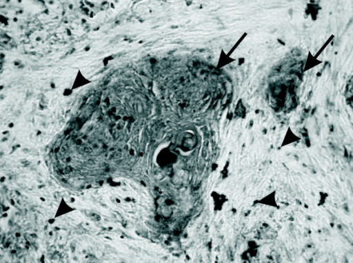 Immunolocalisation of hCG in cervical carcinoma. Immunohistochemistry was performed using specific antibodies against hCG on paraffin section of tumor tissue. Hormone staining was localized predominantly in the neoplastically transformed epithelial cells as indicated by the arrows. Positive immunostaining was also detected in single cells in stroma – arrowheads. Original magnification, ×400.