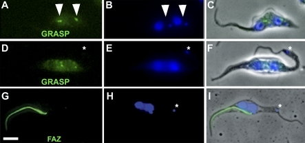 RNAi Knockdown of BILBO1 Induces Loss of Basal Body–Mediated Golgi Segregation and Causes Defects of Important Cytoskeletal Structures(A–C) A nontransformed 2K2N cell probed with anti-GRASP (green) and DAPI (blue), illustrating two major GRASP signals (arrowheads) located between the segregated kinetoplasts and nuclei.(D–F) A BILBO1 RNAi-induced (36 h) 2K2N cell probed with anti-GRASP. The two GRASP signals are observed near the nuclei. Despite a limited degree of Golgi segregation, no GRASP signal is observed near the new kinetoplast. The kinetoplast and the new flagellum (asterisk) are located in the extreme posterior end of the cell.(G–I) BILBO1 and the FPC are important for cytoskeleton organisation. Immunofluorescence micrograph of a PF cytoskeleton probed with L3B2 (anti-FAZ) antibody after BILBO1 RNAi knockdown (36 h). The flagellum-to-cell body attachment is lost, and the new flagellum is located at the posterior region of the cell. No new FAZ is formed, whereas the old FAZ remains associated with the old flagellum. The kinetoplast (asterisk) is located in the extreme posterior of the cell.Scale bar indicates 5 μm.
