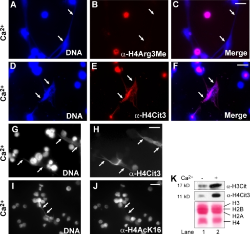 Chromatin decondensation induced by PAD4 activation and histone citrullination in HL-60 granulocytes. (A–C) Loss of histone H4Arg3 methylation on the decondensed chromatin (denoted by arrows) after calcium ionophore treatment. (D–F) Increase in H4Cit3 on the decondensed chromatin (denoted by arrows). (G and H) Grayscale images show an increase of H4Cit3 on decondensed chromatin (denoted by arrows). (I and J) Grayscale images show that H4K16 acetylation was not elevated on the decondensed chromatin (denoted by arrows). (K) Changes in histone H3 and H4 citrullination analyzed by Western blotting. Ponceau S staining shows the amount of histones. Bars, 20 µm.