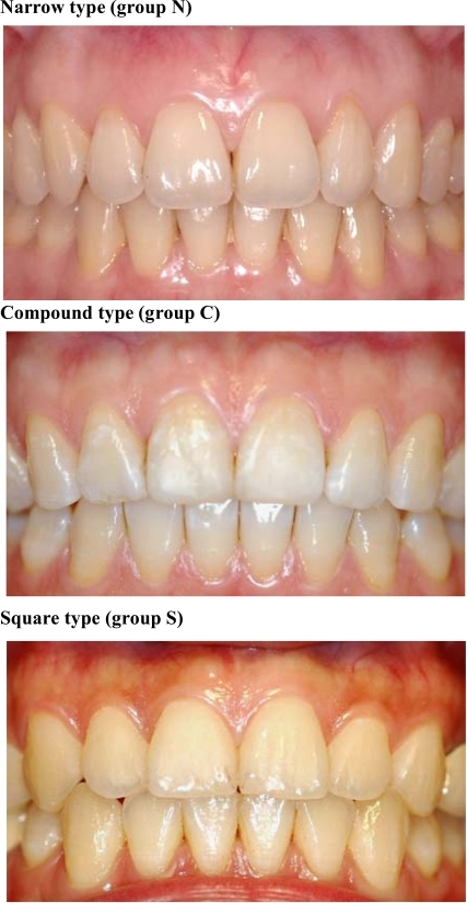 Crown Forms And Gingival Characteristics Narrow Type Open I