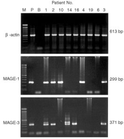 Electrophoresis of second round of PCR products amplified from cDNA of PBMC samples of HCC patients. (1) M: molecular marker, 100 bp DNA ladder (Gibco); (2) P: Mel-Ed1, Positive control of nested MAGE-1 (299 bp) and MAGE-3 (371 bp) transcripts; (3) B: Blank control, PCR amplification in the absence of template; (4) β-actin (613 bp), cDNA quality control, which was amplified for one round of 35 cycles and all the samples shown here were positive; (5) Patient No. 1, 2, 3, 4, 10 showed MAGE-1 transcript positive, while patient No. 1, 2, 3, 14, 16 showed MAGE-3 transcript positive: (6) The second band of MAGE-3 transcript shown in Patient No. 1 and 14 was the genomic DNA with the size of 452 bp.