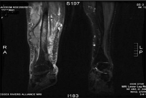 Figure 0005 mri of right leg showing malignant infiltration of tibia