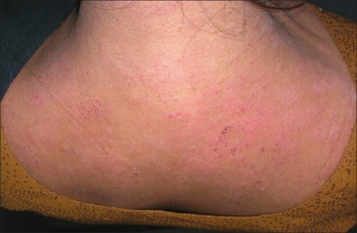 contact dermatitis on back