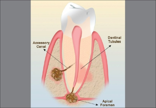 a comprehensive review of periodontitis The aim of this review is to discuss the evidence behind the a comprehensive discussion of the results based on the systematic an increasing number of patients have become aware of the detrimental effects of periodontal disease and tooth-loss and they seek.