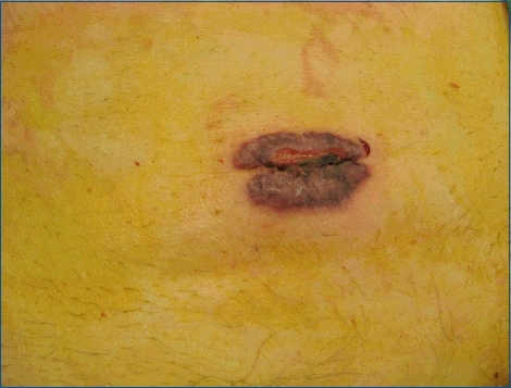 Early violaceous change around a laparoscopic port site