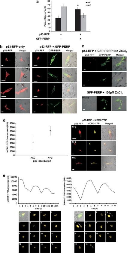 p53 cellular localization is influenced by PERP expression and is subject to oscillatory regulation. (a) p53 localizes primarily in the nucleus following PERP expression. MEL202 cells transfected with p53–RFP or p53-RFP and GFP–PERP were monitored by confocal fluorescence microscopy and the analysis of the intracellular distribution of proteins of interest was undertaken at 20-h PT. The number of cells exhibiting a predominant nuclear localization (N>C) or a more even p53 distribution in the nucleus and cytoplasm (N≤C) were counted and are presented as the mean percentage of transfected cells from three independent transfections with S.D. p53–RFP was predominantly nuclear in a significantly higher proportion of cells when co-expressed with GFP–PERP compared with cells expressing p53-RFP only (*T-test, P=0.04). (b) Representative images showing the predominant cytoplasmic localization of p53 (red) in the absence of GFP–PERP expression (left panel), and the prevalent nuclear p53 localization (red) in the presence of GFP–PERP (green; right panel), following induction of the pMT promoter of p53–RFP with 100 μM ZnCl2. Scale bar=20 μm. (c) ZnCl2 does not influence PERP expression or p53 localization. Low basal expression of p53–RFP observed in the absence of ZnCl2 induction had a predominant nuclear localization in the presence of GFP–PERP expression, whilst 100 μM ZnCl2 had no effect on GFP–PERP expression or localization. Scale bar=20 μm. (d) Increased MDM2 expression occurs when p53 is primarily localized in nucleus. MEL202 cells were co-transfected with p53–RFP and MDM2-YFP and images were taken from three independent transfections at 20-h PT. YFP fluorescence was measured in arbitrary units (AU) in cells expressing p53 predominantly in the nucleus (N>C) or more evenly in the nucleus and cytoplasm (N≤C). Mean fluorescence is indicated (♦) with S.D. MDM2-YFP fluorescence was significantly higher in cells expressing p53 primarily in the nucleus (T-test, P<0.0005). Representative images of the differential localization of p53 (red) and MDM2 (yellow) are shown. Scale bar=20 μm. (e) PERP-induced elevated MDM2 expression exhibits oscillations. MEL202 cells co-transfected with GFP–PERP (green in bright field) and MDM2-YFP (yellow) were monitored by time-lapse fluorescence microscopy. Nuclear MDM2–YFP fluorescence was measured (AU) in single cells over time (hours) and data are presented graphically alongside corresponding time point images. An arrow indicates the relevant cell where necessary