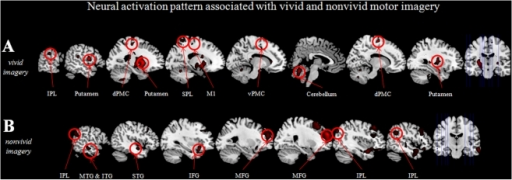 Brain areas showing greater activation as a function of vivid (A) and nonvivid (B) motor imagery based on calculating a parametric modulation.