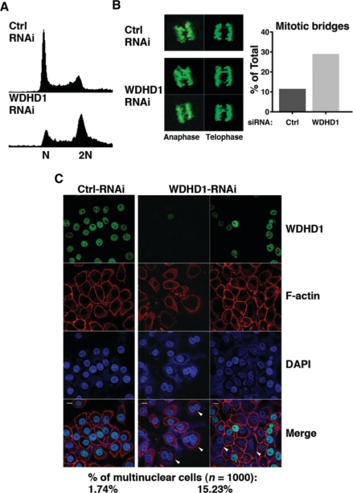 Down-regulation of WDHD1 leads to cell cycle progression deficiencies attributable to defective centromere. (A) Cell cycle profiles of the control (ctrl) and WDHD1 knockdown cells. Mock or WDHD1-knockdown 293T cells were subjected to FACS for measurement of DNA content. (B) Mitotic fidelity was assessed by scoring mitotic cells with chromosome bridges. Condensed mitotic chromosomes were visualized by phospho-histone H3 immunostaining. Representative immunofluorescence images are depicted on the left. Both anaphase and telophase nuclei are shown, as indicated. Panel on the right shows the percentages of mitotic cells with chromosome bridges in control (ctrl) versus knockdown cells (n = 250). The results represent averages of three independent experiments. (C) Nuclear morphology was altered in WDHD1-deficient cells. Control (ctrl) and knockdown HeLa cells were immunostained for WDHD1, and counterstained for F-actin (for demarcating cell membrane) and DNA (DAPI). Confocal microscopy was done as described before (scale bar is 10 µm). Percentages of cells with more than one nuclei staining, examples of which are indicated by arrowheads, are shown on the bottom (n = 1000) and represent averages of three independent experiments.