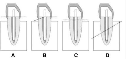 Failure patterns of specimens. A: Core fracture, B: Core-root fracture, C: Favorable root fracture, D: Unfavorable root fracture.
