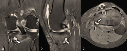 Semimembranosus insertional cyst. The coronal (a), sagittal (b) and axial (c) fat saturated proton density weighted images show an intraosseous cyst (white arrows) located at the semimembranosus insertion. Semimembranosus tendon is shown with a black arrow. Findings of ACL reconstruction are also visible