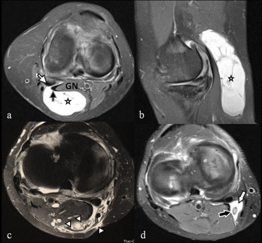Popliteal cysts. The axial (a) and sagittal (b) fat saturated proton density weighted images show a large multiseptated popliteal cyst (asterisks) emerging between the medial gastrocnemius tendon (black arrow) and the semimembranosus tendon (white arrow) and abutting the medial gastrocnemial muscle belly (GN). The axial (c) fat saturated proton density weighted image shows a ruptured popliteal cyst (arrowheads). The axial (d) fat saturated proton density weighted image demonstrates a Baker's cyst (white arrow) with a single loose osteocartilaginous body inside the cyst (black arrow)