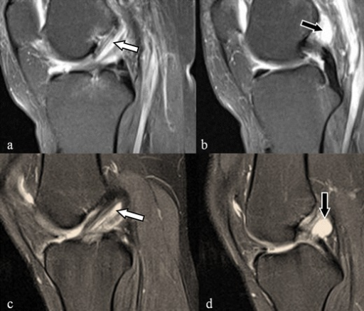 ACL ganglion cysts. Two sequential sagittal fat saturated proton density weighted images in two different patients (upper and lower row) demonstrating a cystic lesion (black arrow) at the upper segment of the ACL with part of the lesion (white arrow) dispersing into the ACL fibres