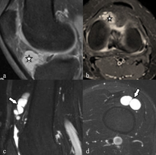 Hoffa's fat pad ganglion cysts: the sagittal (a) and axial (b) fat saturated proton density weighted images in two different patients demonstrate a multiloculated septated cystic lesion (asterisks) within the Hoffa's fat pad. Ganglion cyst of the suprapatellar bursa: the sagittal (a) and axial (b) fat saturated T2-weighted images show a lobulated cystic lesion (arrows) in the suprapatellar bursa
