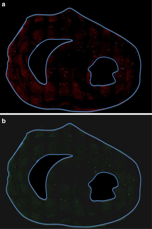 Confocal microscopy images. a. confocal images at stress, b. confocal images at rest.
