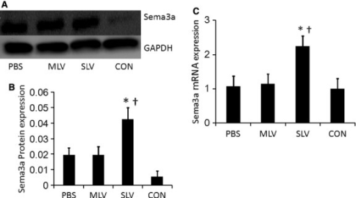 Effect of SLV on Sema3a mRNA and protein expressions. The SLV could significantly up-regulate the Sema3a mRNA and protein level. A representative Western blot (A). Relative densitometric values of Western blots (B). Values were calculated from three independent experiments; *P < 0.05 versus the PBS group, †P < 0.05 versus the MLV group. (C) mRNA expression of Sema3a by RT-PCR in different groups. The values had been normalized to GAPDH measurement and then expressed as a ratio of normalized values to mRNA in static control group; *P < 0.05 versus the PBS group, †P < 0.05 versus the MLV group.