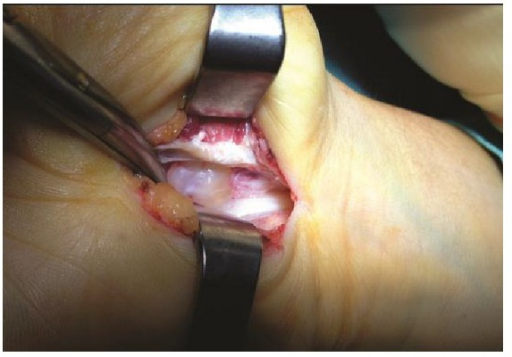 Intraoperative photograph shows the ganglion in the carpal tunnel. The flexor tendons and the median nerve were retracted.