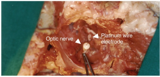 The surgical approach to the retrobulbar optic nerve. Implantation of platinum wire electrode into the optic nerve.