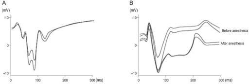 Visual evoked potentials (VEPs) to the flash stimuli for the controlled object. (A) VEPs to the flash stimuli on a left eye. (B) VEPs to the flash stimuli on a right eye (before optic nerve was severed).