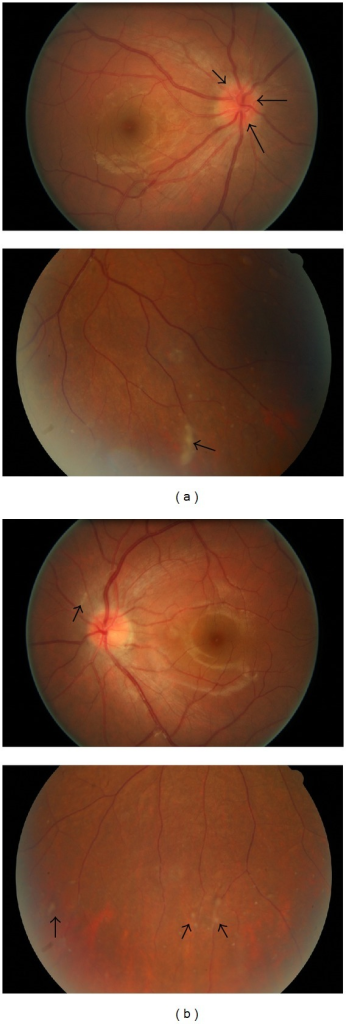 Color fundus photographs taken at initial presentation. (a) Right eye, the disc was hyperemic and its margin was slightly blurred (black arrows). Vitreous clumping and large yellow spots of chorioretinitis were seen in the inferior retina (black arrows). (b) Left eye, multiple small yellow spots of chorioretinal inflammation at the posterior pole and inferior retina (black arrows).