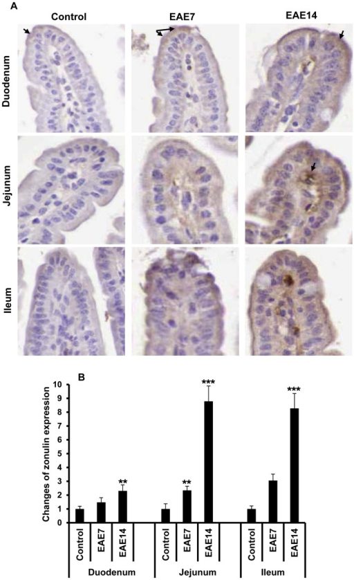 Increased Zonulin Expression In The Small Intestinem Open I