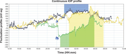 Results of 24-hour intraocular pressure monitoring in session 1 (blue line), session 2 (yellow line), and session 3 (green line).Notes: Drop signs indicate the time of drop instillation. Shaded areas correspond to periods of sleep in the recumbent body position.Abbreviations: IOP, intraocular pressure; mV eq, millivolt equivalent.