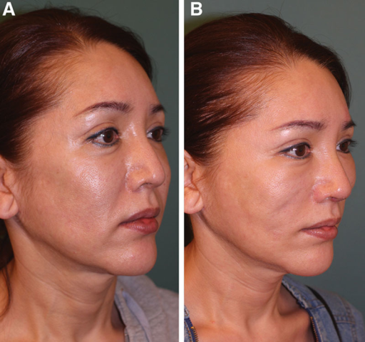 Before thread lift (A) and 6 months after thread lift (B) with REEBORN.