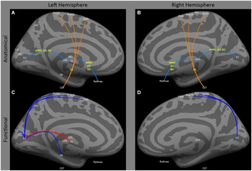 Medial view of left and right hemispheres. The upper panels (A,B) are a summary of major findings from the human anatomical connectivity literature, as described in the main text. Increases in anatomical connectivity as a result of early blindness or anophthalmia are shown in orange; decreases in connectivity are shown in teal; types of anatomical measurements are shown in yellow. The lower panels (C,D) are a summary of major findings from the human functional correlations literature. Increases in functional correlations as a result of early blindness or anophthalmia are shown in red; decreases in functional correlations are shown in blue. Some lines represent findings from multiple studies. Explanations of abbreviations can be found in Section Abbreviations.