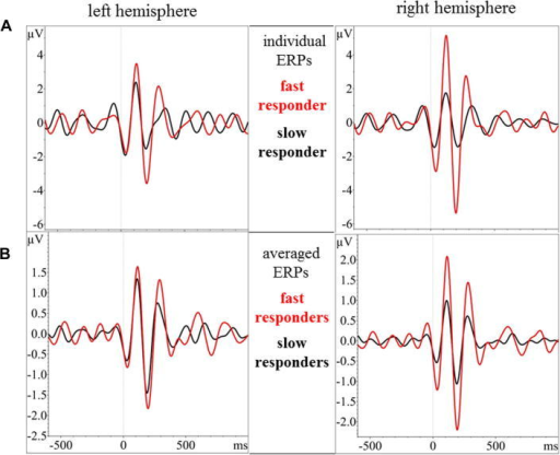 Illustration of cortical theta oscillations in response to non-living NOF− items. (A) Woman showing the shortest latency in response to a noun (red) and woman showing the longest latency in response to a noun (black). (B) Average of theta oscillations of women with shortest (below median split of RTs) (red) and longest (above the median split) latencies. Line at 0 ms indicates onset of noun presentation. ERP, event-related potential. (For interpretation of the references to color in this figure legend, the reader is referred to the web version of this article.)