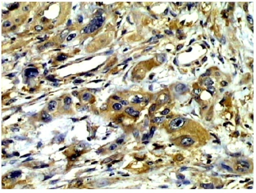 Strong positive expression of CXCR4 in metastatic squamous carcinoma tissues (200x).