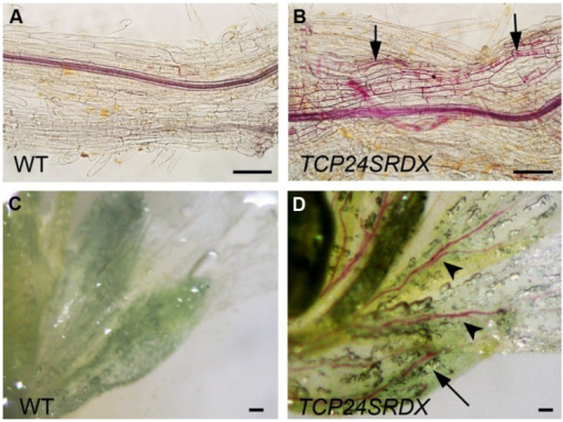 Ectopic thickening of secondary walls in p35S:TCP24SRDX plants. The tissues were stained with phloroglucinol staining to detect the lignified secondary wall thickening. (A,B) Roots of the wild type (A) and p35S:TCP24SRDX plants (B). Arrows in (B) indicate ectopic deposition of secondary walls. (C,D) Flowers of the wild type (C) and p35S:TCP24SRDX plants (D). Arrow and arrowheads in (D) indicate enhanced deposition of secondary walls in sepals (arrow) and petals (arrowheads). Scale bars: 100 μm.