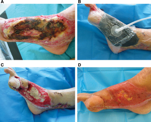 A, Electrical burn in a 79-year-old man with bone exposure on the inner side of the foot. B, Setting up PROVACUUM before attempting a skin graft. C, After 1 week of NPWT, a significant bone exposure persists in the middle of the wound. D, A split-thickness skin graft was performed after 3 weeks of NPWT. The wound healing is almost complete.