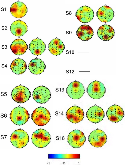 The spatial distributions of the interested source signals from Fourier-ICA analysis. Results were from 14 of the 16 subjects, and subjects S 11 and S 15 were excluded. No source components were found in the subjects S10 and S12. Signal space distribution was denoted by selected color circles and color intensity (–1 to 1) on the map. Blue represents –1, Red represents 1.