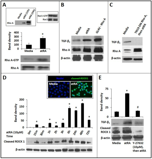 AtRA-induced TGF-β2 expression in IECs is mediated via RhoA GTPase and ROCK1.A. Representative Western blots show increased expression of activated RhoA (RhoA-GTP) in IEC6 cells treated with atRA × 4h. Activated RhoA was pulled down from cell lysates using Rhotekin-agarose beads. Bar-diagram (means ± SE) summarizes densitometric data. Inset: Left panel: ATRA also increased the expression of total RhoA in IECs. Right panel: AtRA-treatment did not increase Rac1-GTP in IEC6 cells. B. Western blots show that atRA-induced TGF-β2 expression in IEC6 cells was reproduced by over-expression of the constitutively-active GL4V mutant of RhoA. C. Cells expressing the TN19 dominant-negative RhoA mutant did not show atRA-induced TGF-β2 expression. D. Western blots show cleaved ROCK1 in IEC6 cells, depicted as a function of the duration of atRA treatment. Bar-diagram (means ± SE) summarizes densitometric data. Inset: Fluorescence photomicrographs (magnification 630x) show nuclear localization of ROCK1 (green) in IEC6 cells treated with atRA × 2h. Nuclear staining (blue) was obtained with DAPI (blue). E. Pharmacological inhibition of ROCK1 by Y-27632 blocked atRA-induced TGF-β2 expression in IEC6 cells. Western blots show TGF-β2 and cleaved ROCK1 expression. Bar-diagram (means ± SE) summarizes densitometric data, normalized against β-actin. Data represent 3 separate experiments; * p<0.05 compared to cells cultured in media alone; # indicates p<0.05 compared to atRA-treated cells.